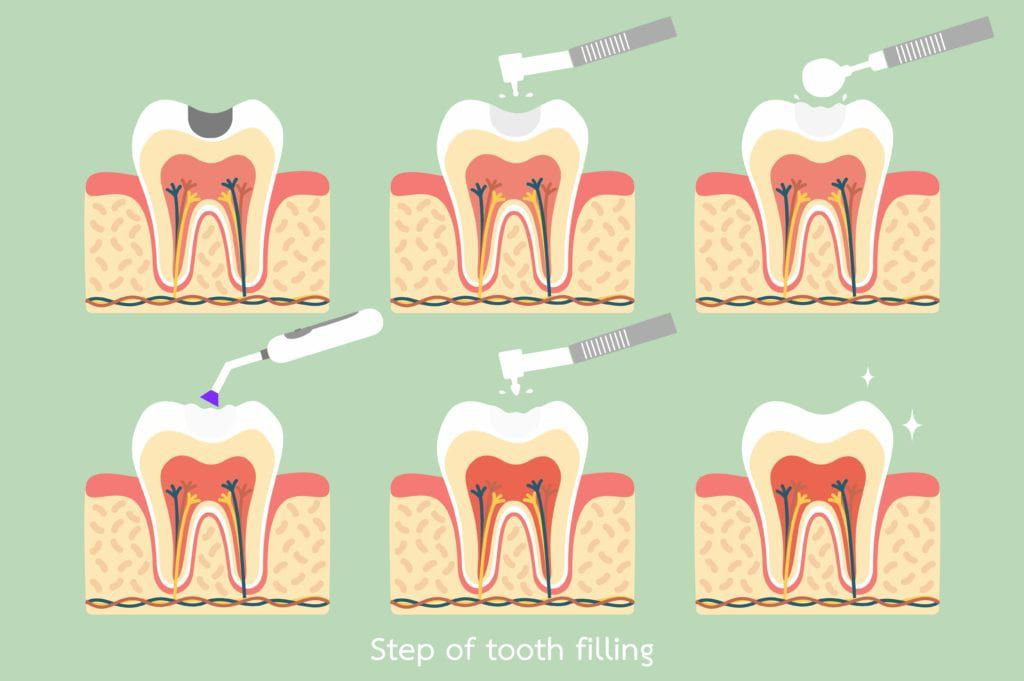 Six steps of placing a dental filling