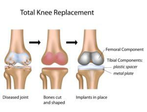 inforgraphic total knee replacement