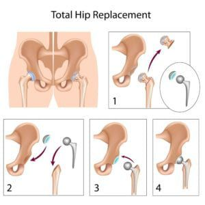 total hip replacement infographic