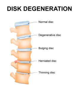 infographic degenerative disk illustration