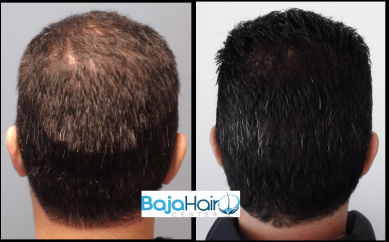 Balding 1