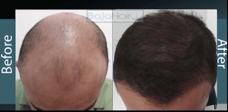 Balding 4
