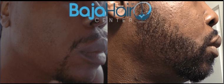 Facial Hair 1