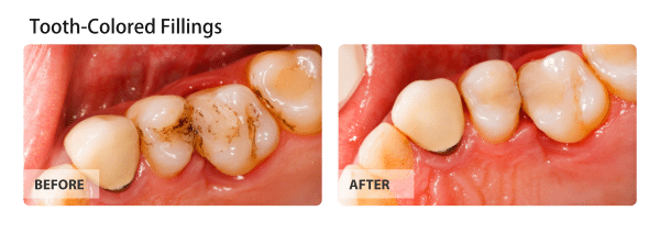 Tooth-Colored-Fillings