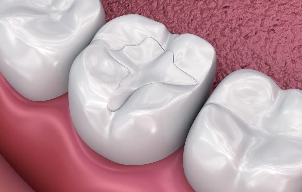 dental filling up-close