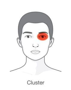 graphic of cluster affected headache
