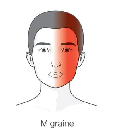 graphic of migraine affected area