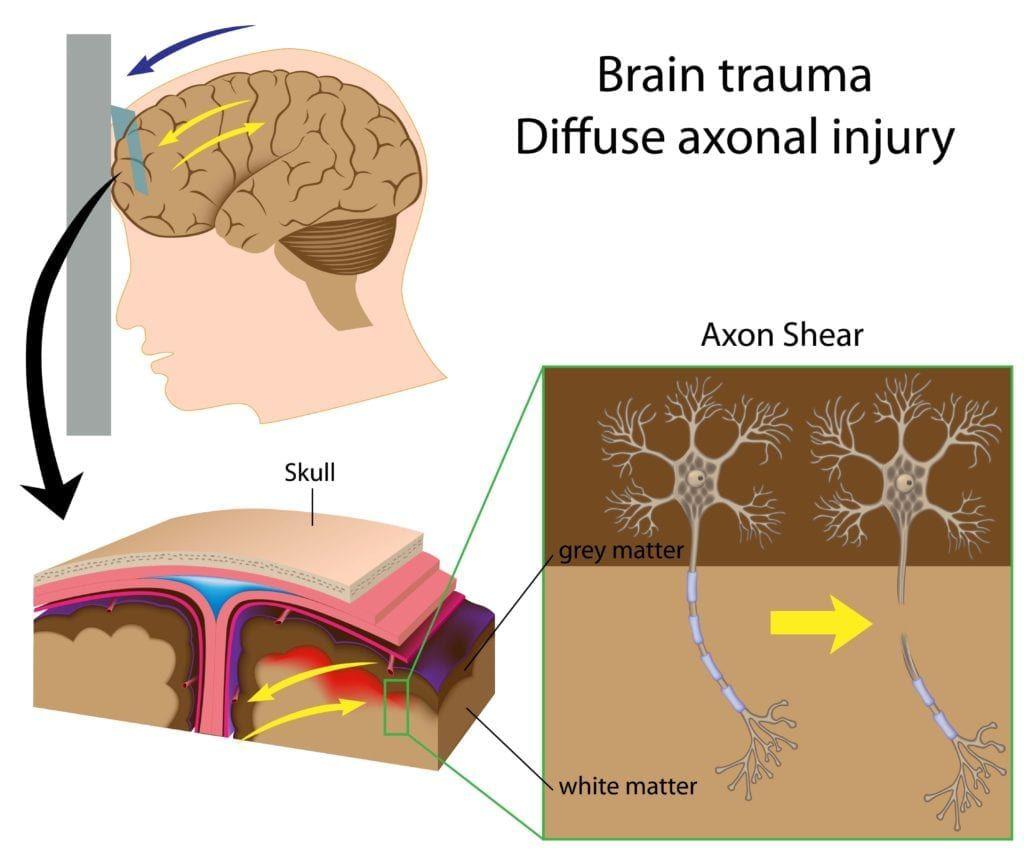 diagram on diffuse axonal injury