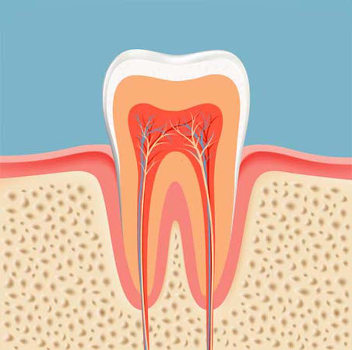 Root Canals in Las Vegas