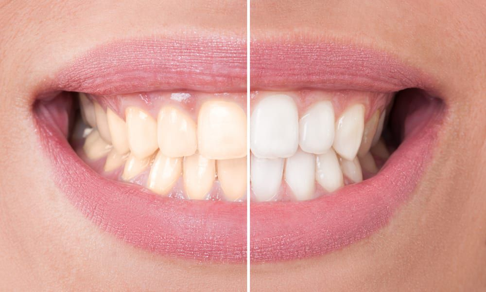 Teeth Whitening in Las Vegas