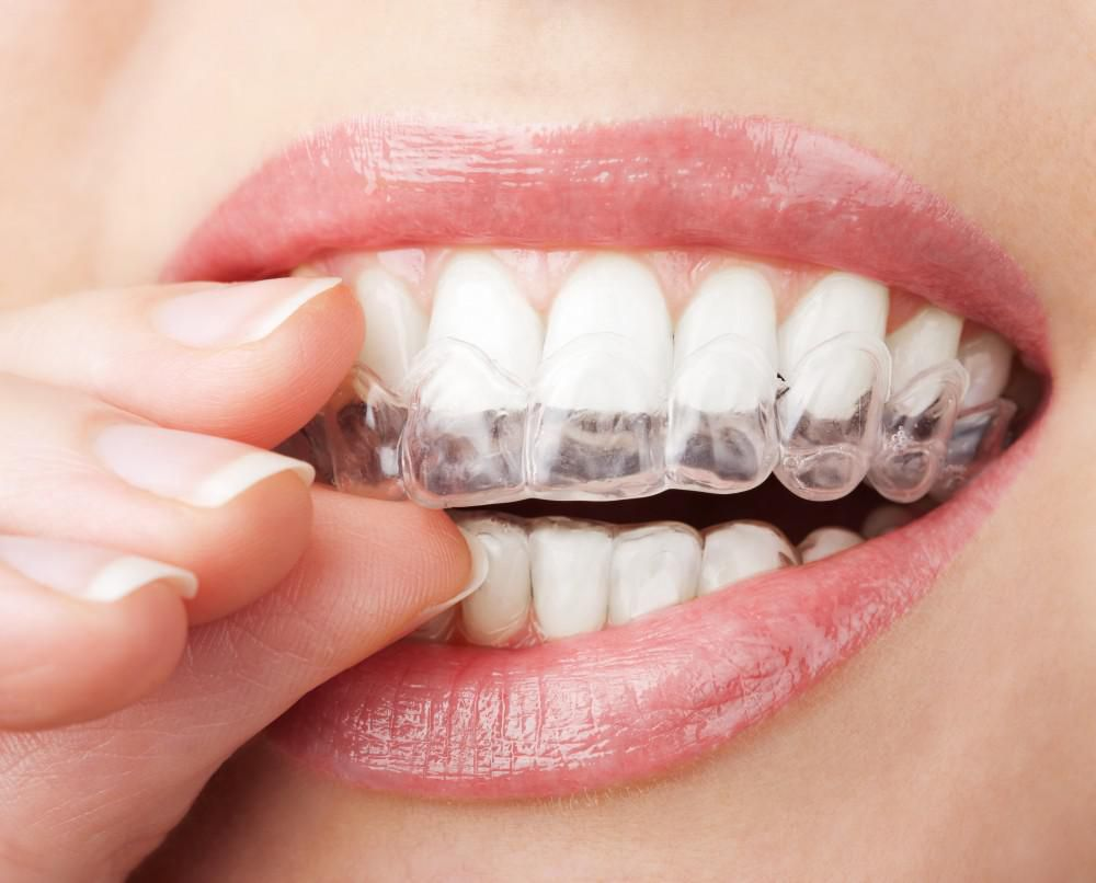 closeup teeth with clear aligners