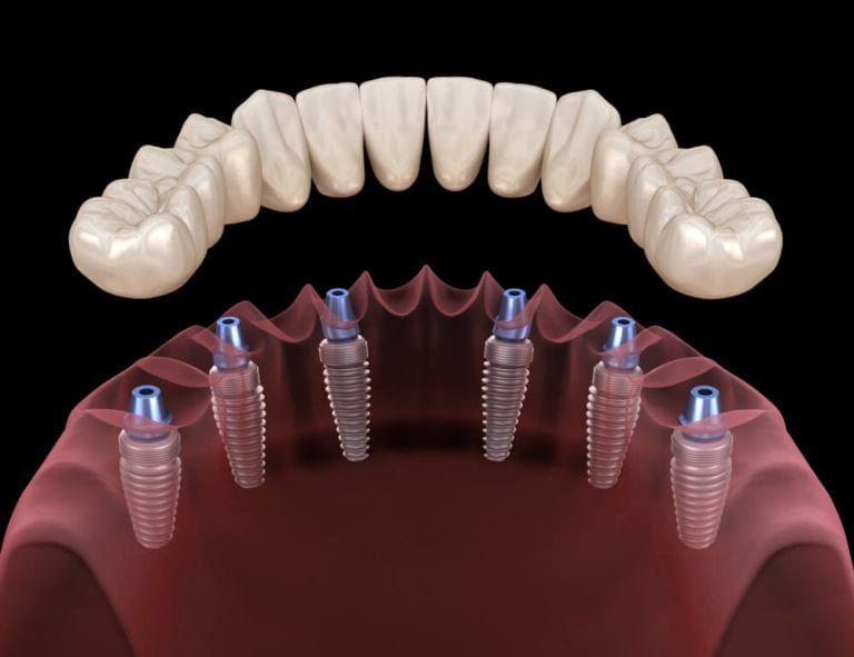 implant support dentures 3d image