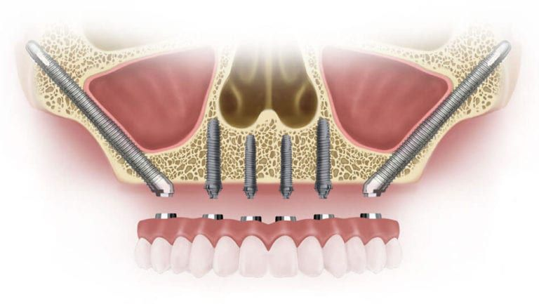 zygomatic implants 3d illustration