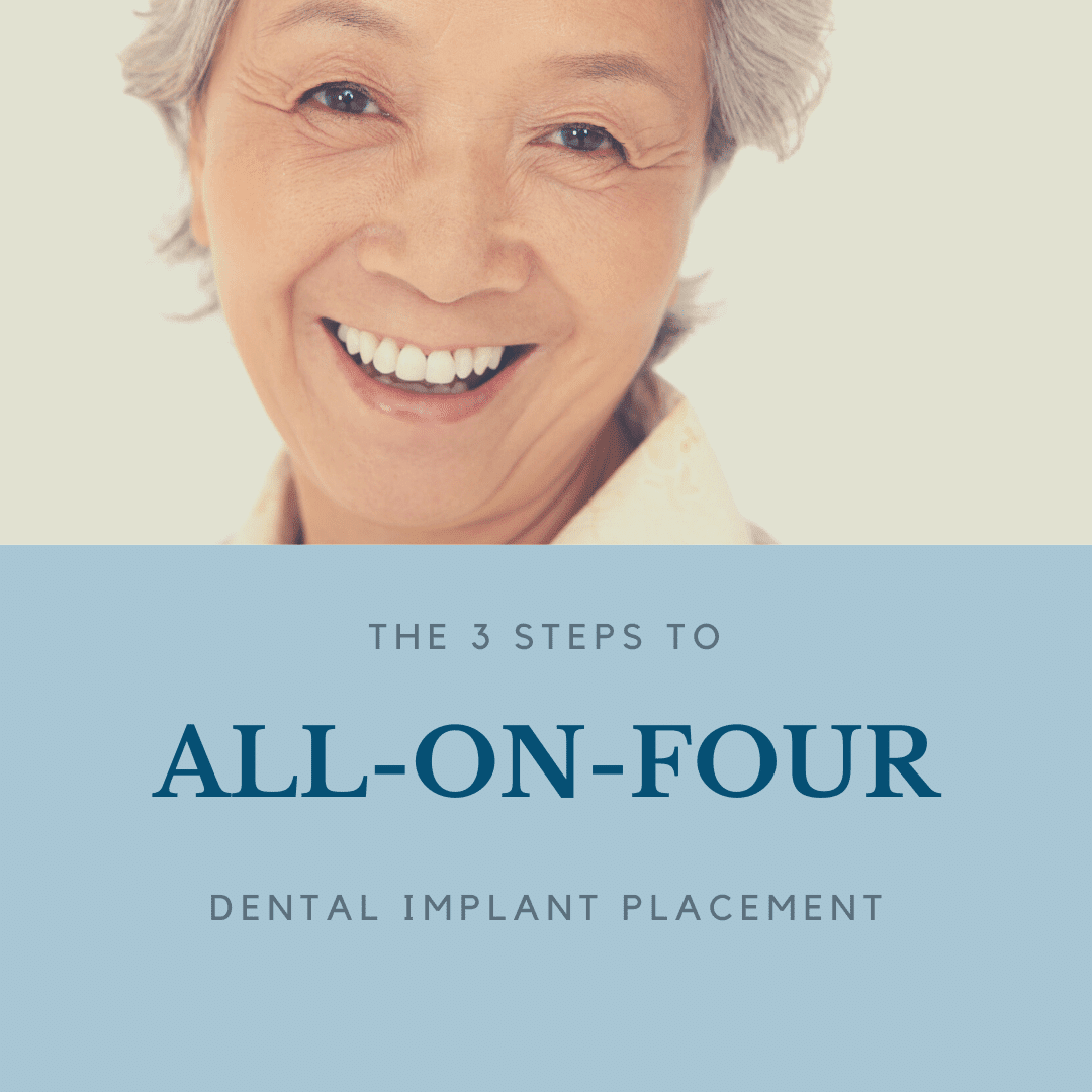 The 3 Steps to all on four implants