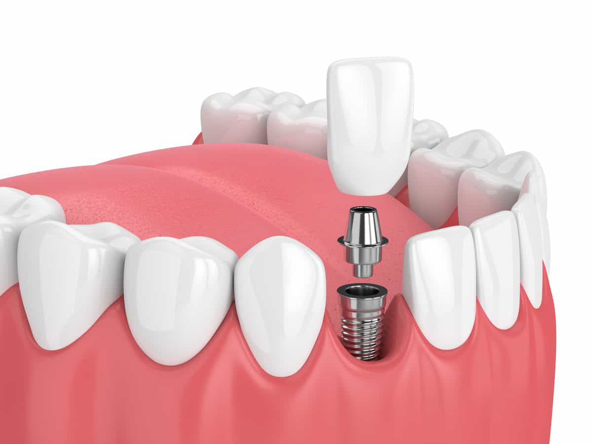 graphic of what a dental implant looks like