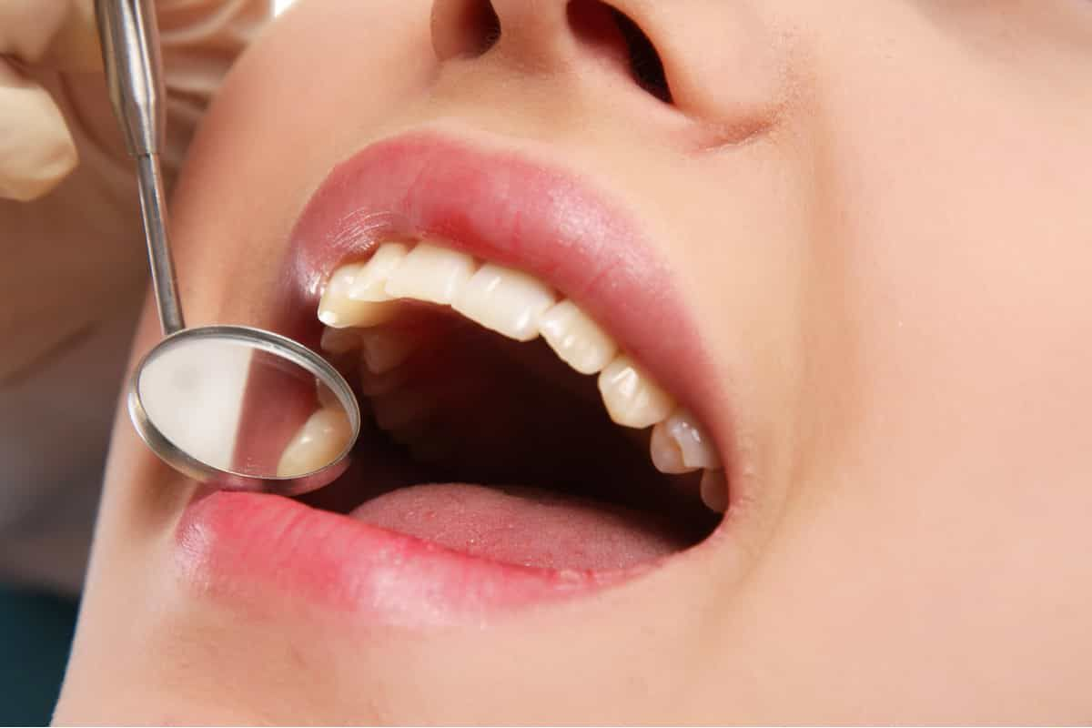 Women with her mouth open with dental mirror to check her teeth