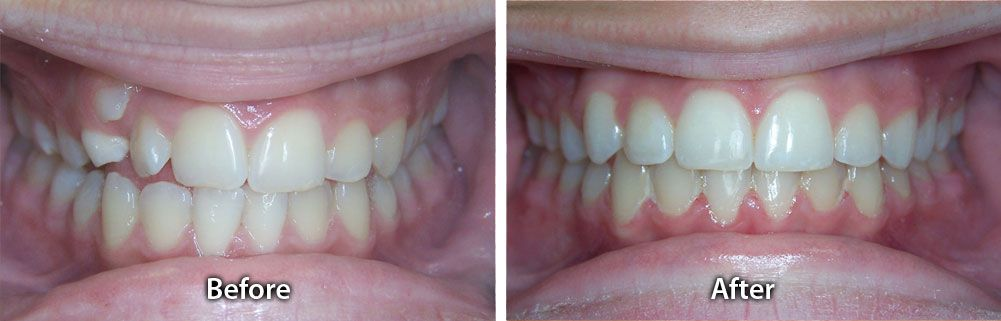 Smile Gallery / Before & After Photo