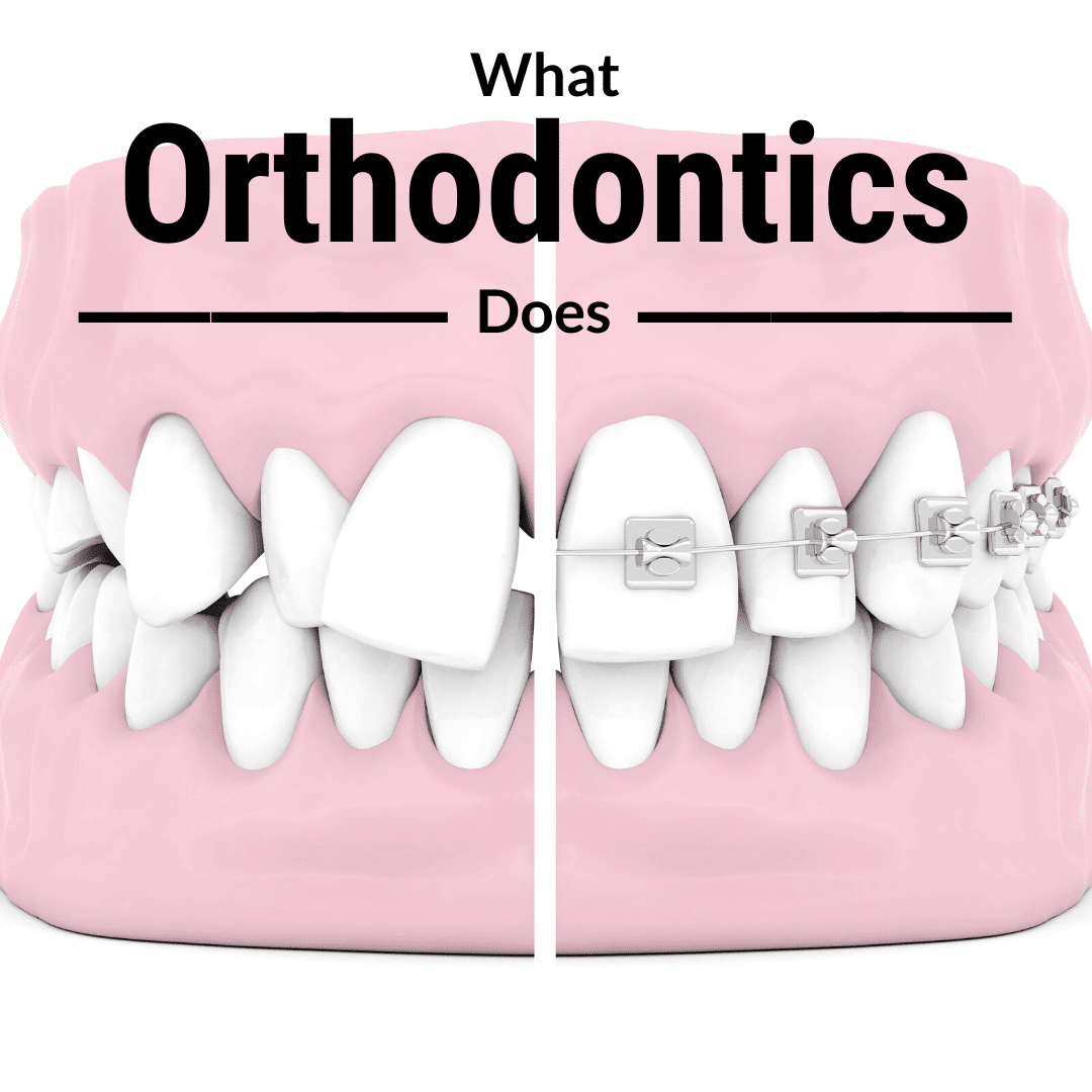 What Orthodontics Does