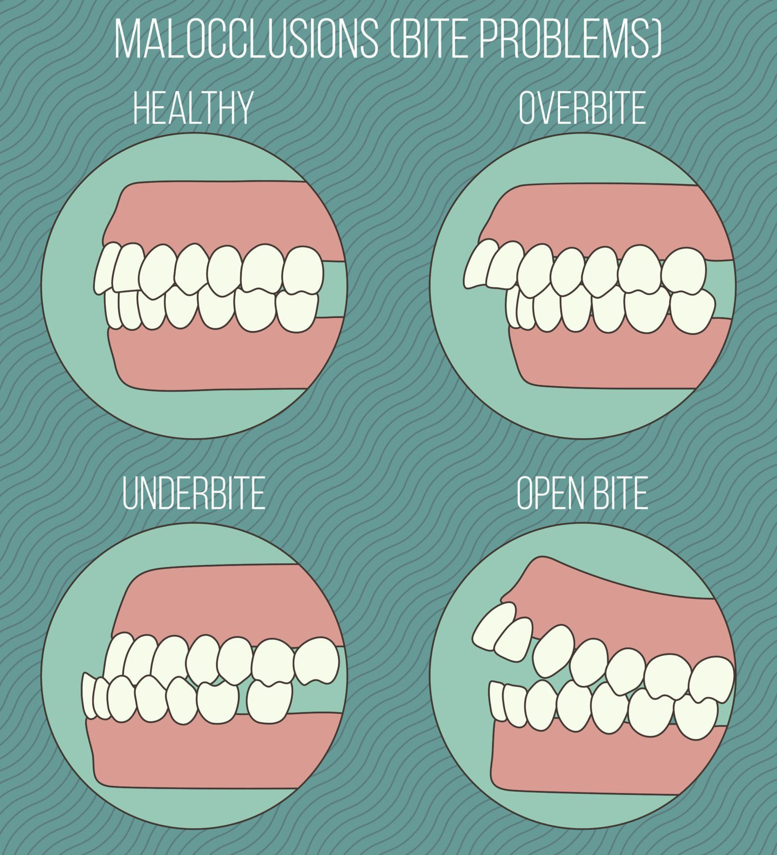 one healthy bite and three cases of malocclusion