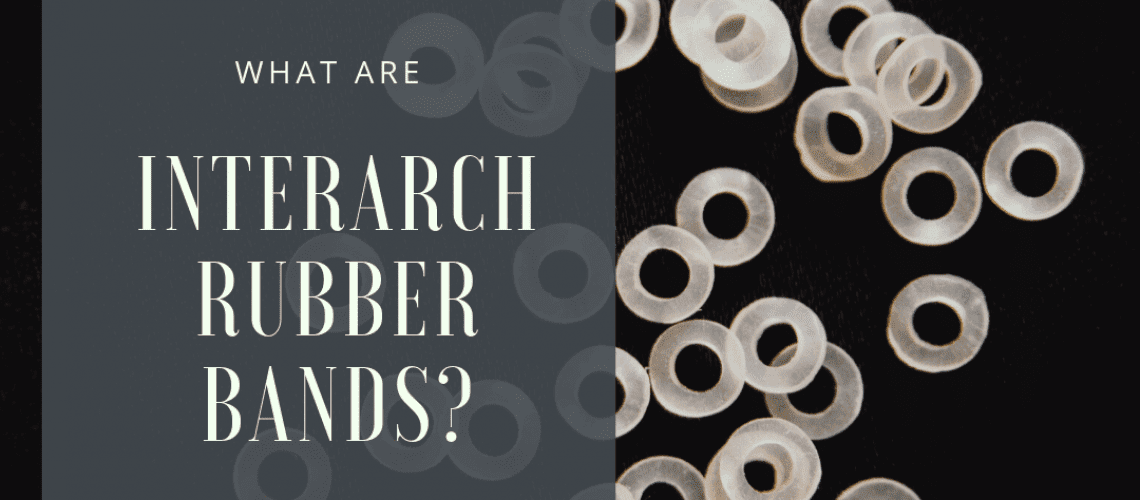 What Are Interarch Rubber bands