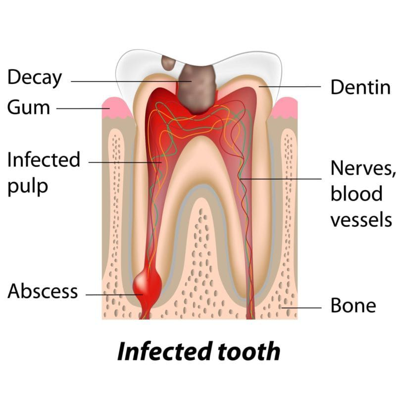 infected-teeth