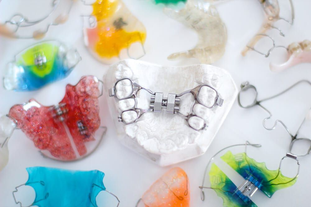 featured imaged for services post, bundle of orthodontic appliances