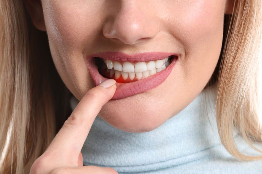 featured imaged for services post, female holding gum from periodontal work