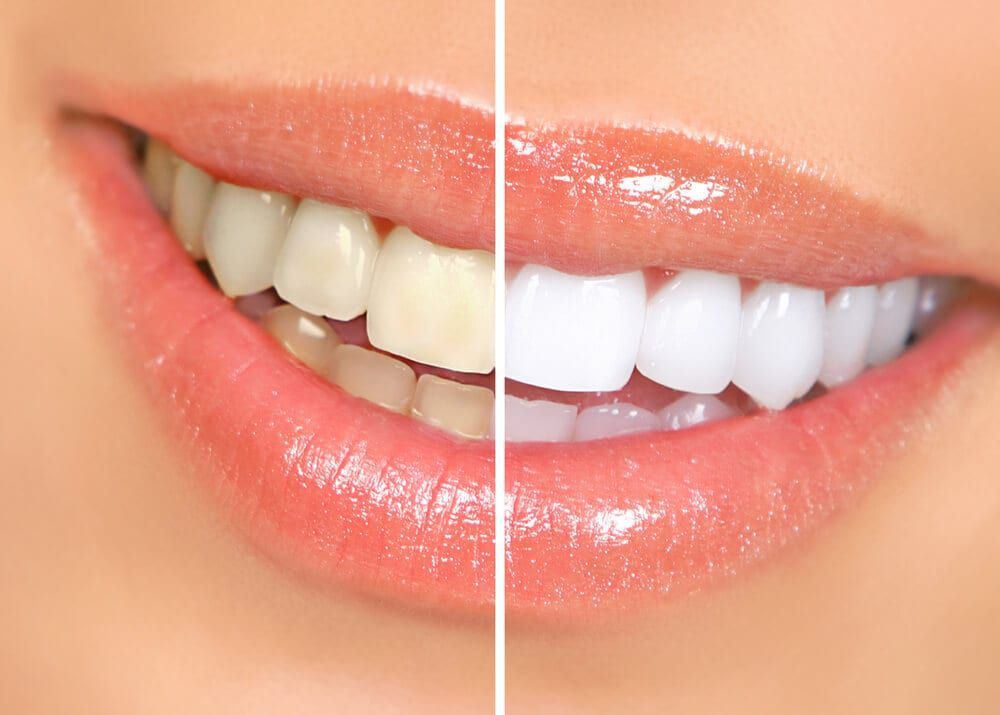 before and after whitening results