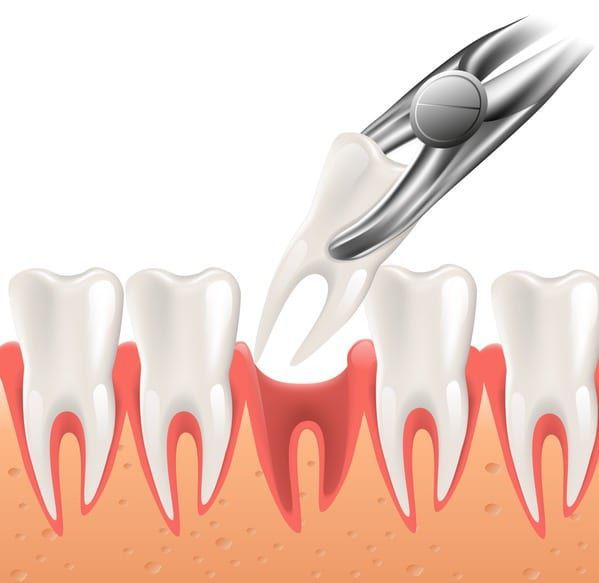 Tooth Extraction in Richland ,WA
