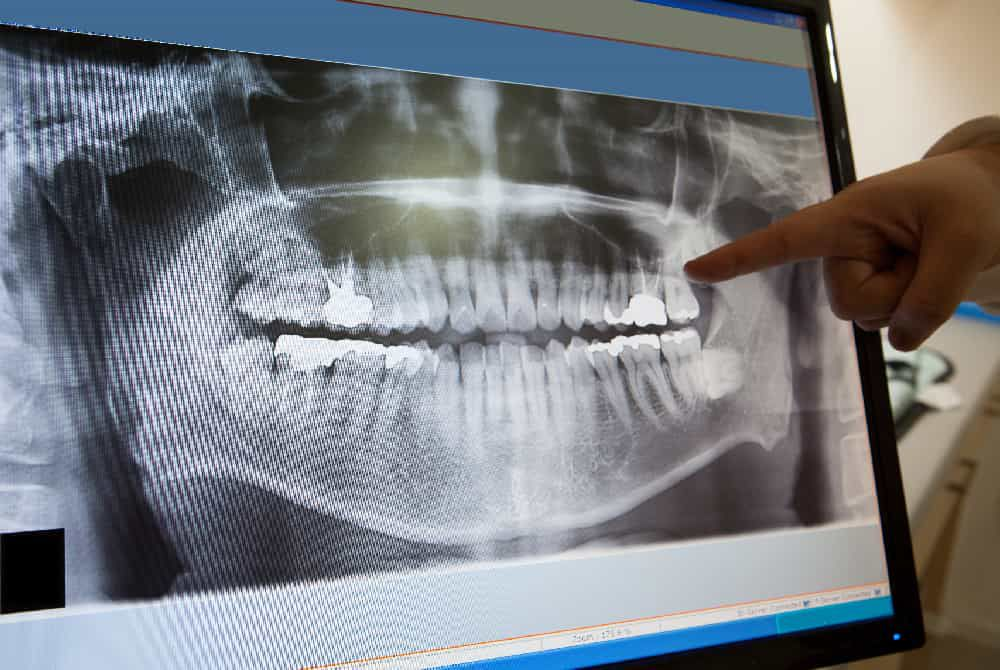 dentist pointing at a digital x ray