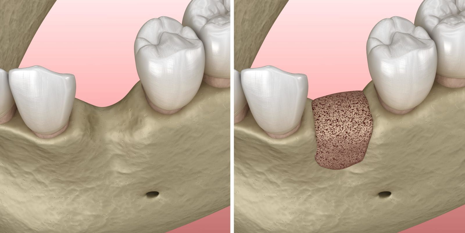 before and after bone graft