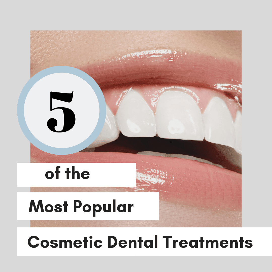 5 of the Most Popular Cosmetic Dental Treatments